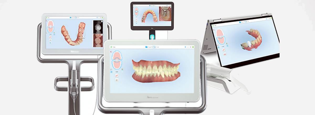 Oral scans on screen